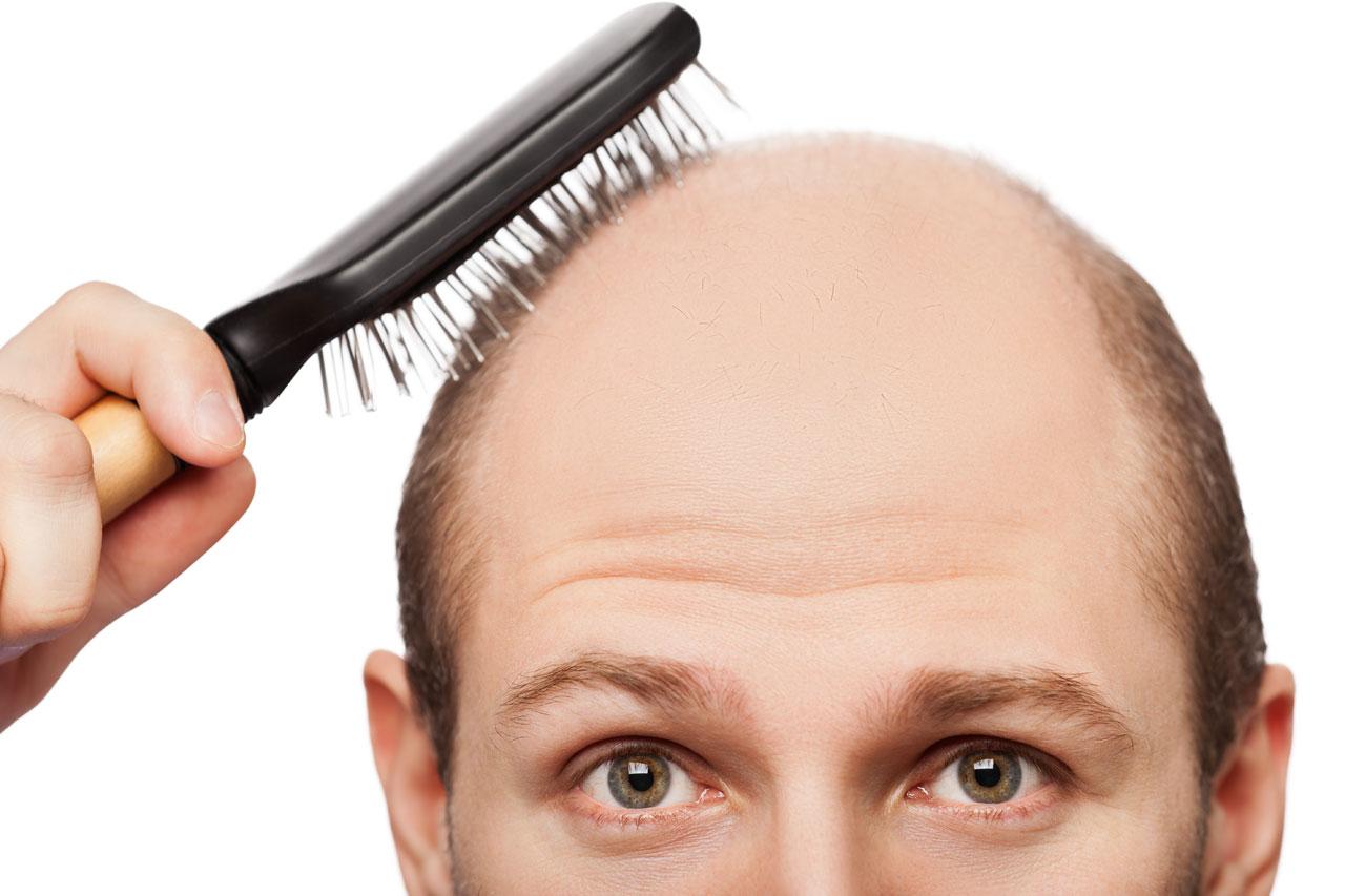 recenti_studi_cibi_ricrescita_capelli